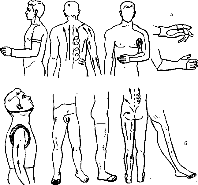 Гипсовые повязки при переломах