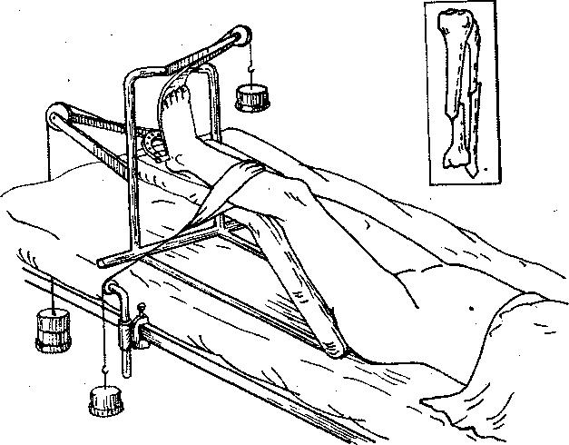 При переломах суставной