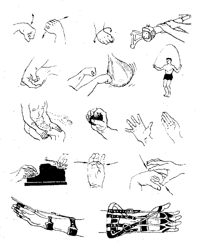 Упражнения при переломе логтевого сустава чем лучше лечить артроз тазобедренного сустава